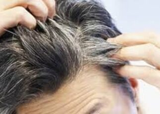 12 Cara Mencegah Rambut Beruban dengan Alami, Bahan Mudah Didapat