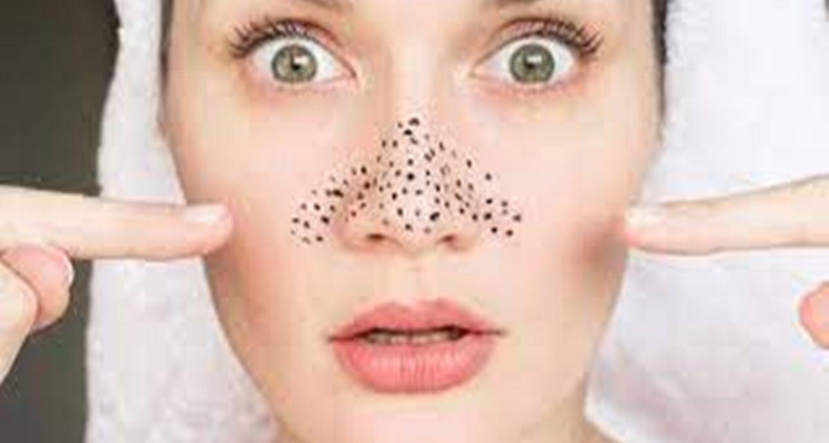 25 Cara Menghilangkan Komedo di Hidung, Bersihkan Pori-Pori